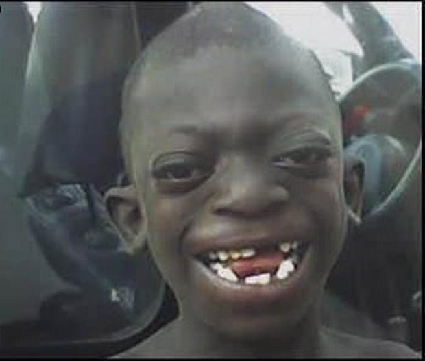 ugly african kid - photo #7